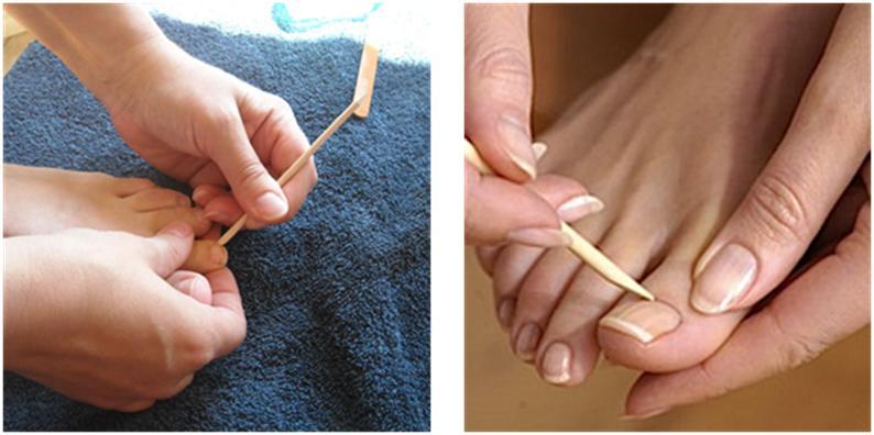 Le microorganisme végétal de la peau molle des pieds